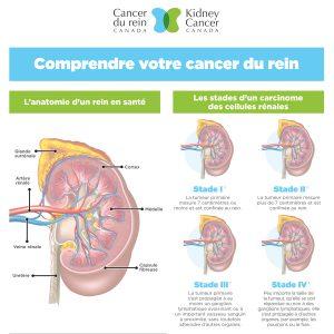 Comprendre votre cancer du rein