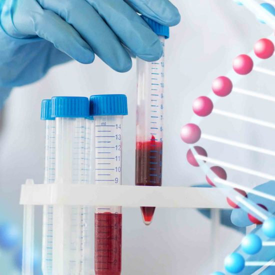 Kidney cancer research results